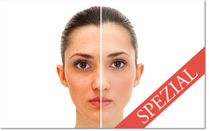 Clean Skin Spezial v1.4 (300breit)