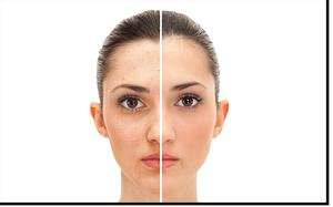 Clean Skin und Clean Skin Express v1.4 (300breit)