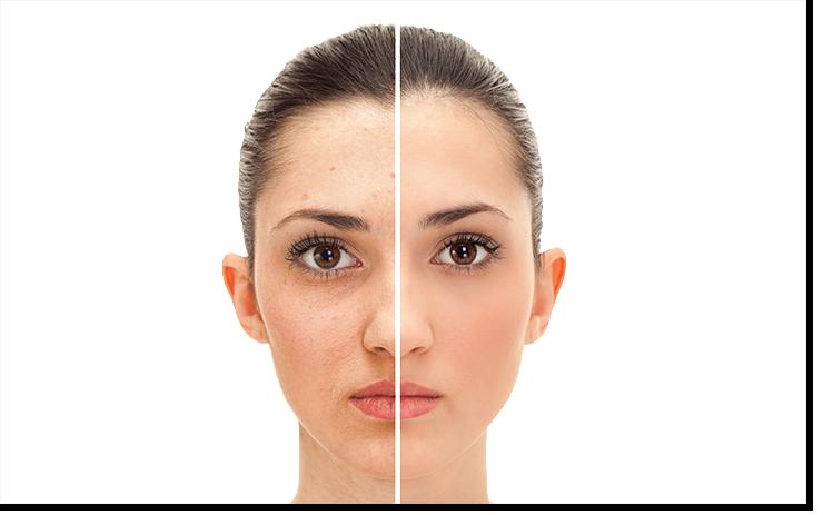 Clean Skin und Clean Skin Express v1.4 (740x463)