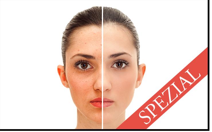 Clean Skin Spezial v1.4 (740x463) - Kopie